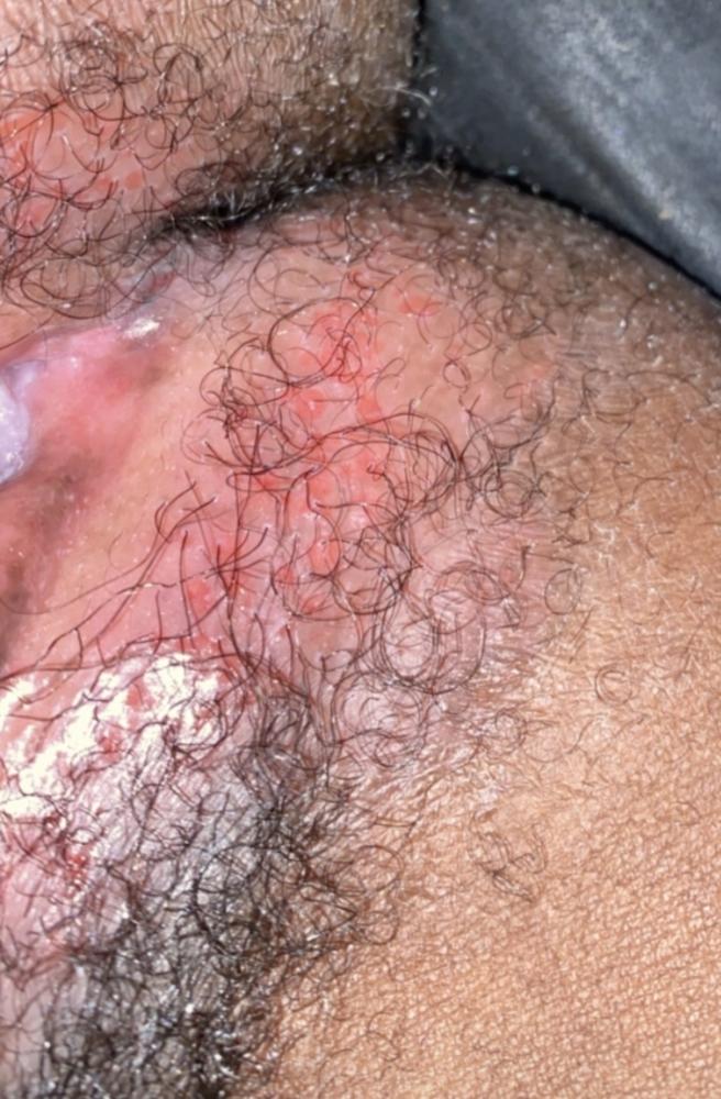 HERPES???? HELP! PLEASE ANYBODY | Genital Herpes Simplex