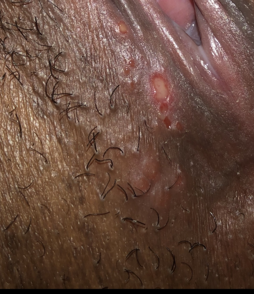HELP!! Could this be Herpes?? | Genital Herpes Simplex