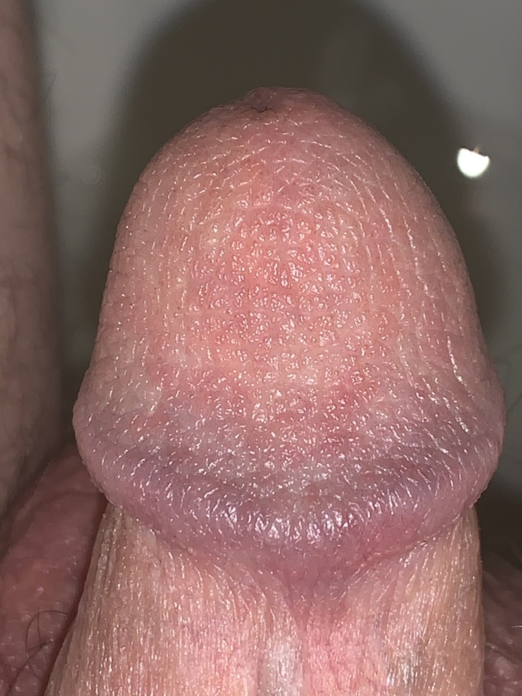 Penis foreskin infections