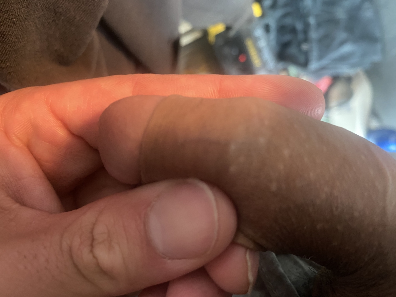 Small clear bumps on penis