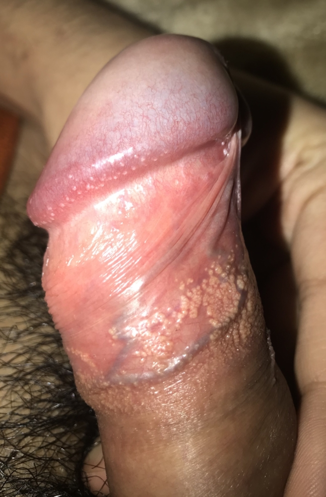 Can you get genital warts without sex #13