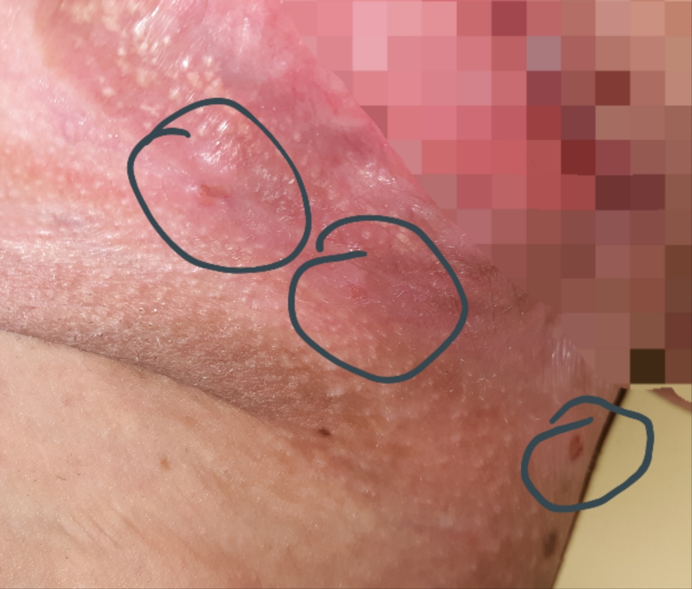 Friction Sores From Intercourse