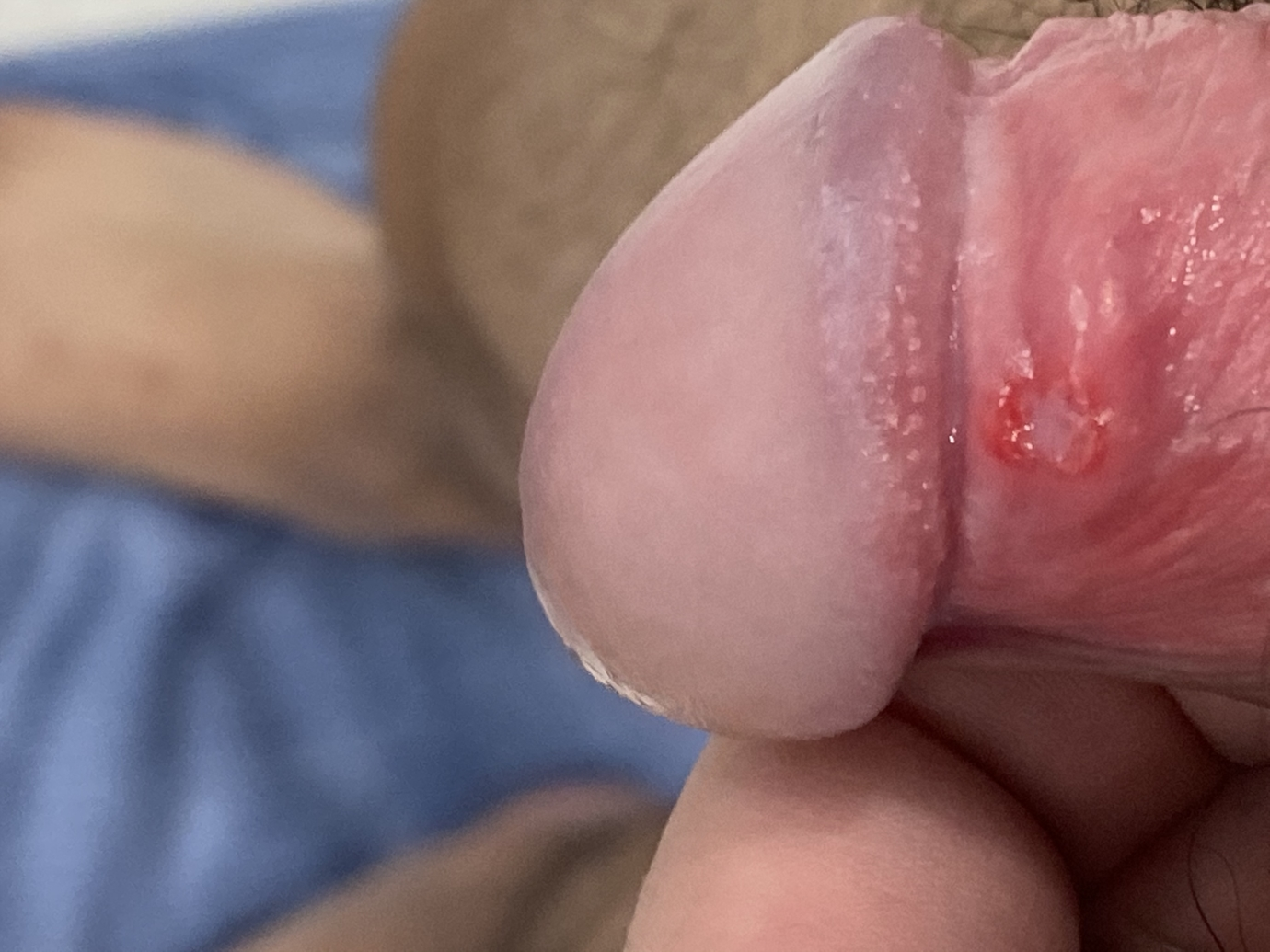 White pimples on penis shaft