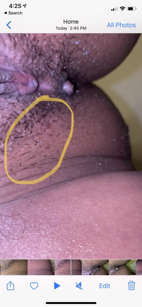 Want to know if its herpes outbreak. Pls help!!   Genital