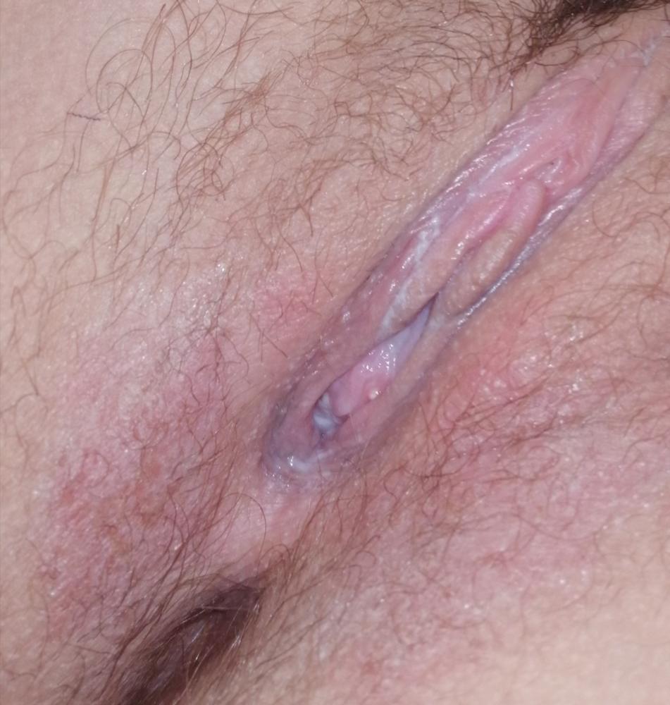Baby rash on genital area
