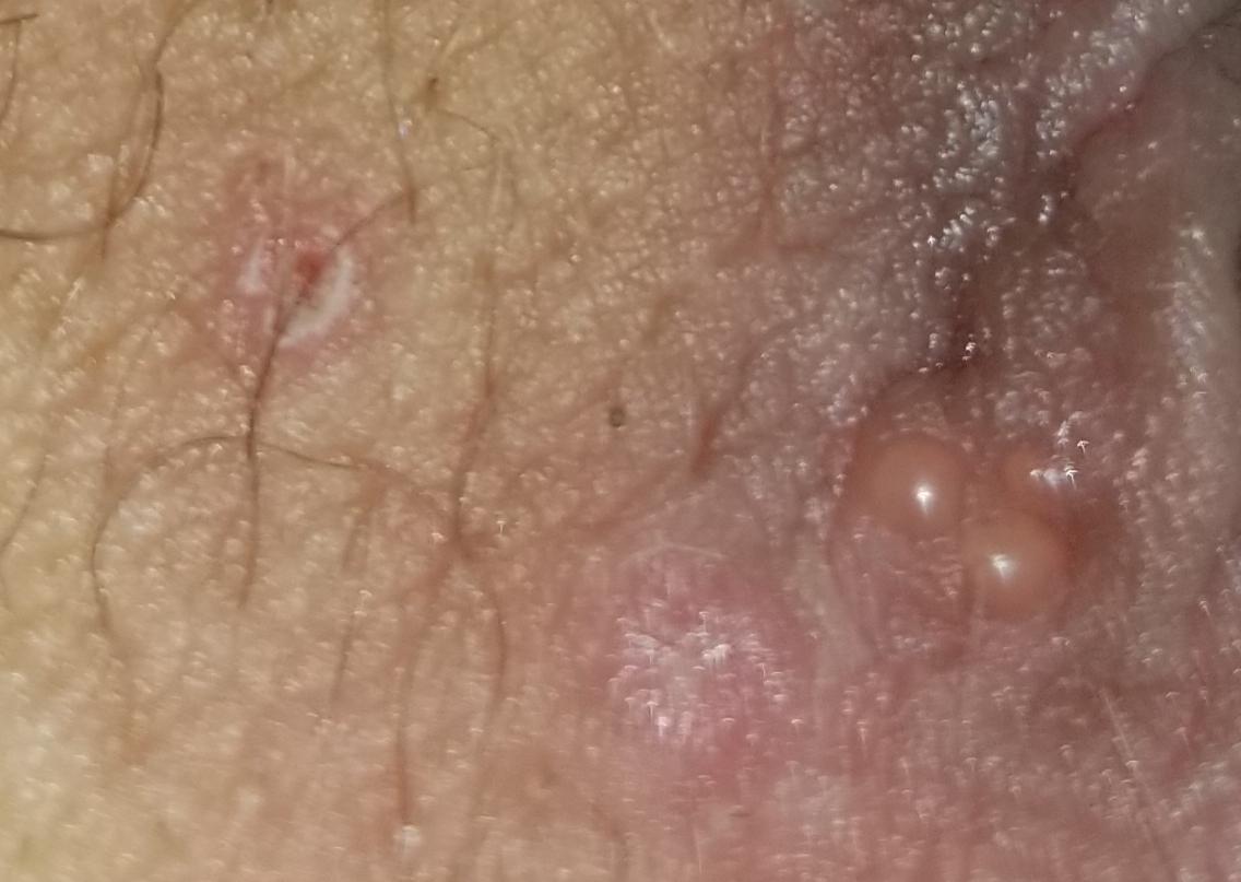I Think I Have Herpes