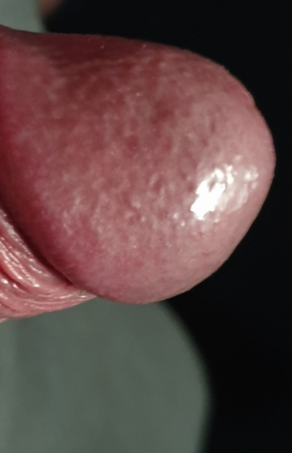 Penis head under Penis irritation