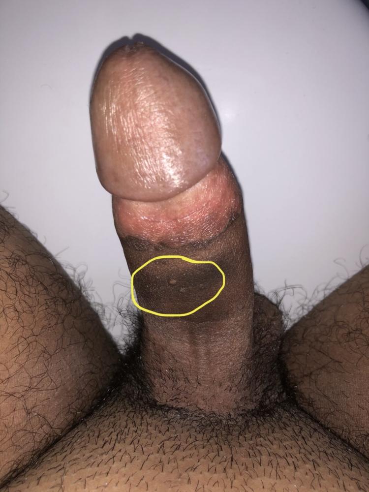 Small Pimple Like Things On Penis Shaft