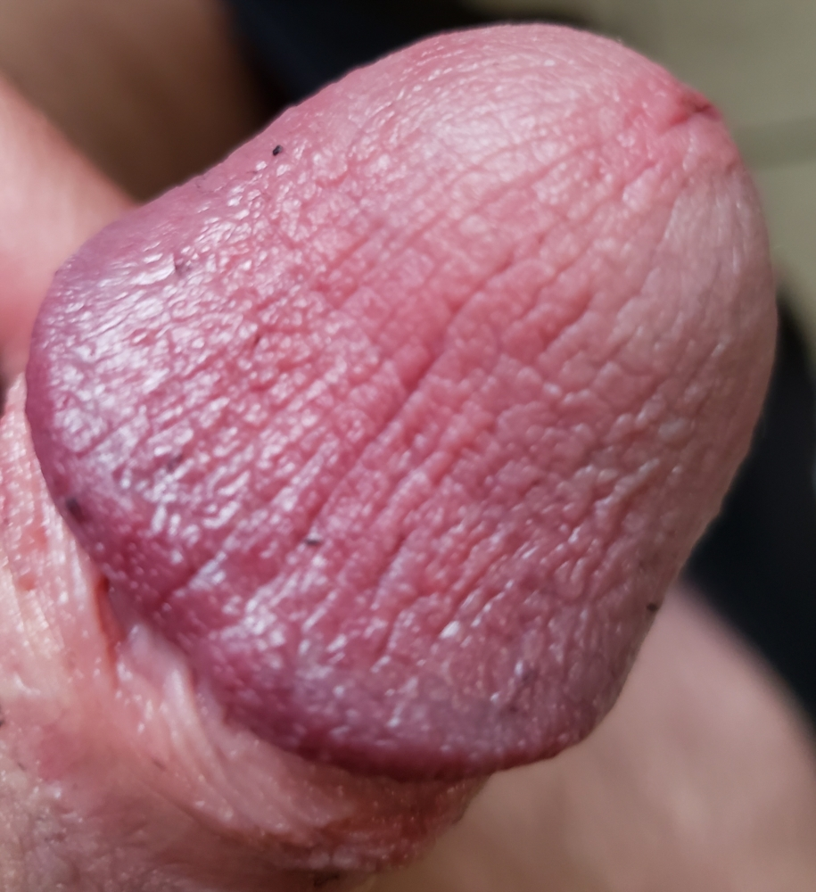 This Blister On My Thumb Looks Like A Penis
