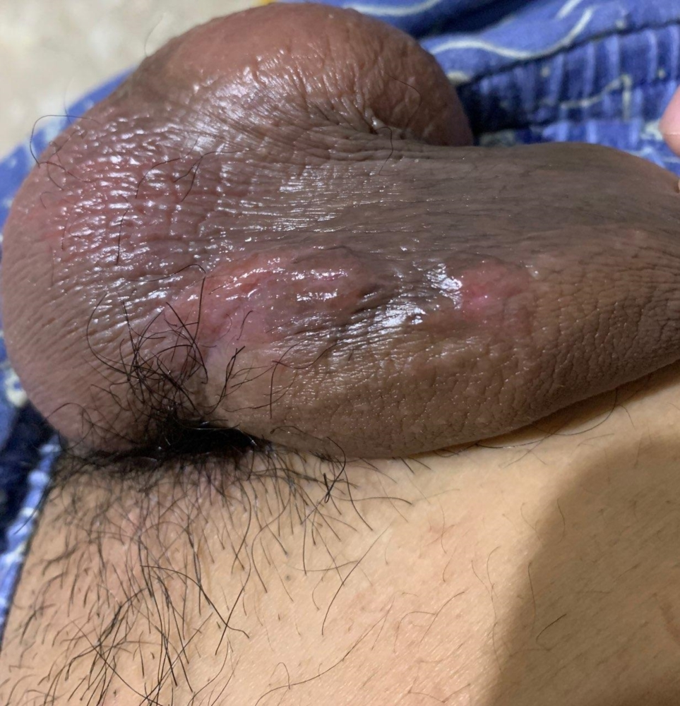 What are these? Are these signs of genital herpes? Or are