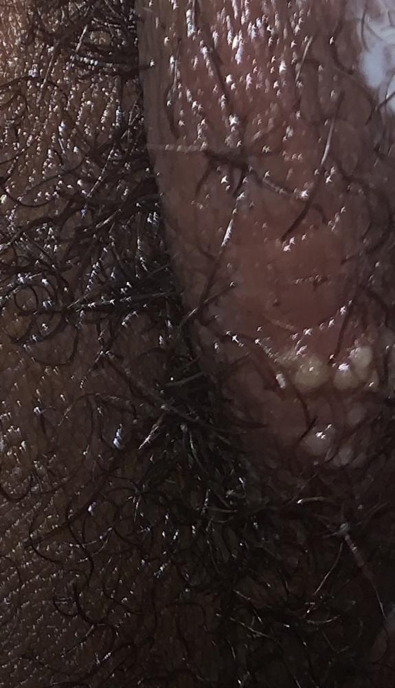 The clitoris labia
