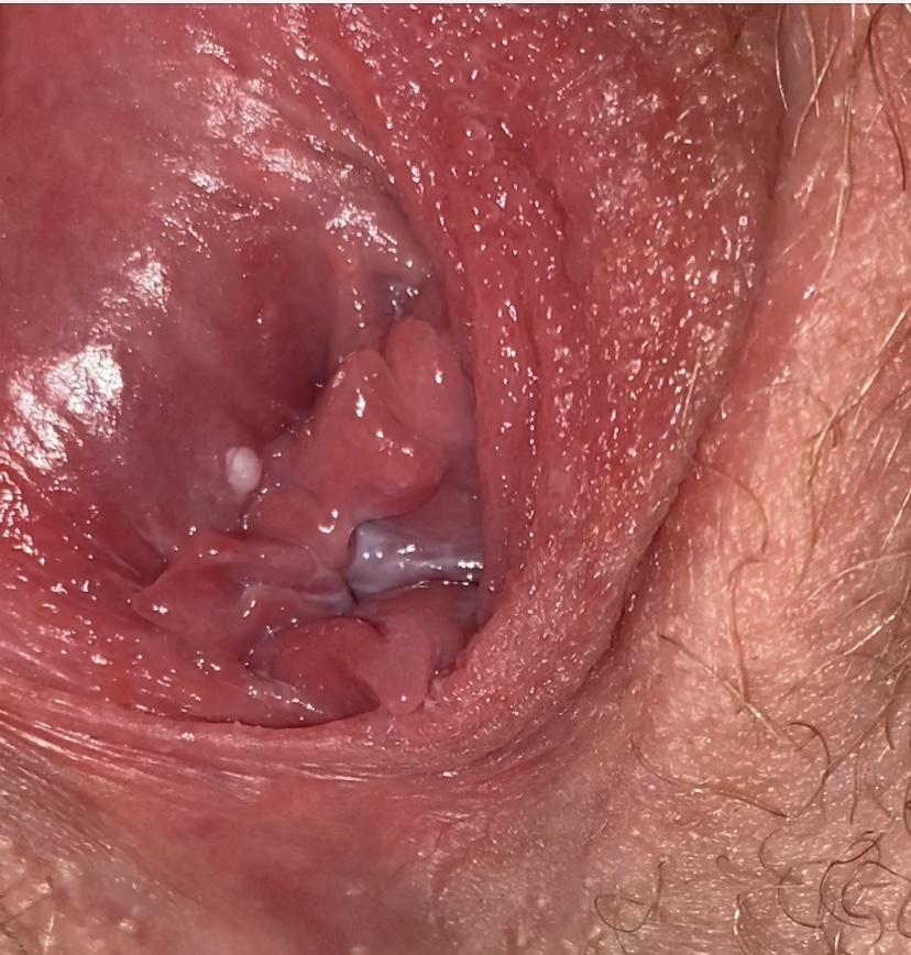 Single hard white bump scrotum