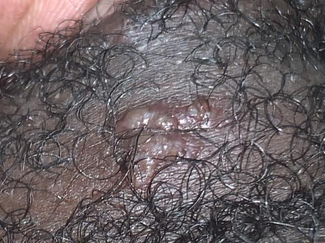 Please help . Is this herpes ?? | Genital Herpes Simplex