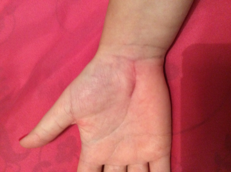 Early days? | Carpal Tunnel | Forums | Patient