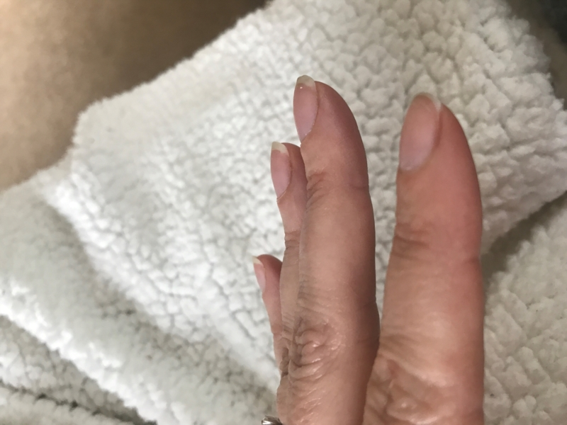 nail bed curved | Nail Disorders | Patient