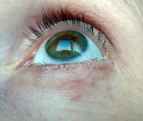 List of Synonyms and Antonyms of the Word: lump under right eye