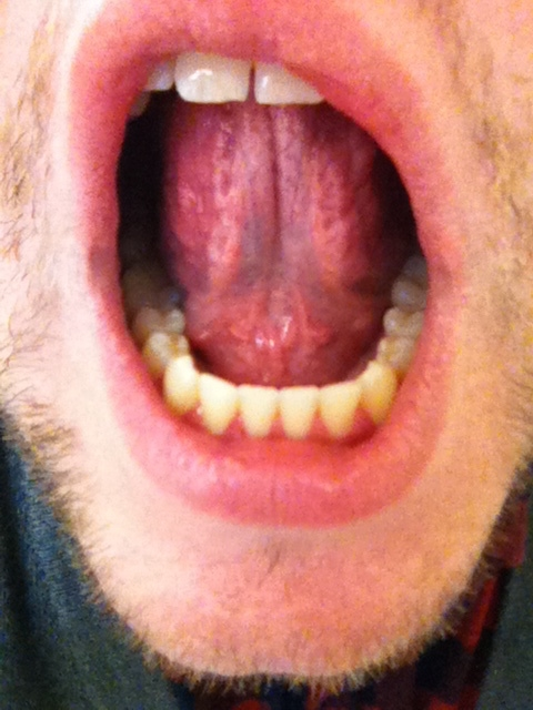 clear bubble on tongue
