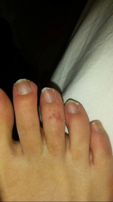 Pompholyx / Dyshidrotic Eczema | Dermatology | Forums | Patient