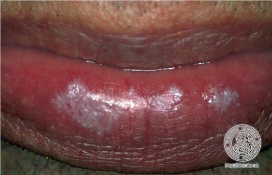 Skin Disorder On Lower Lip Dermatology Forums Patient