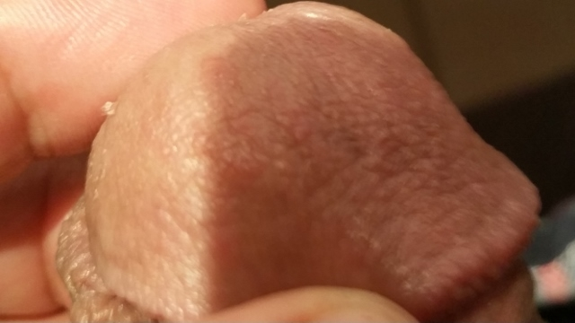 Rough and dry spots on penis due to sex