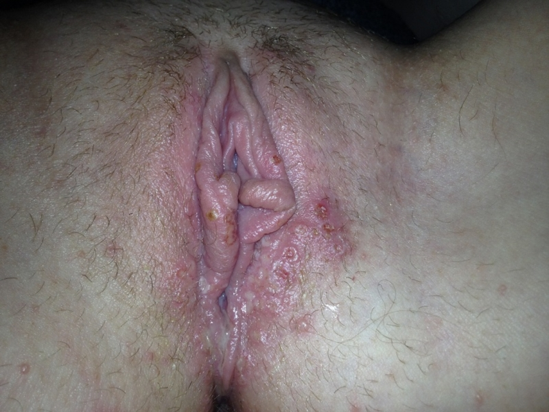 Rash outside vagina after sex