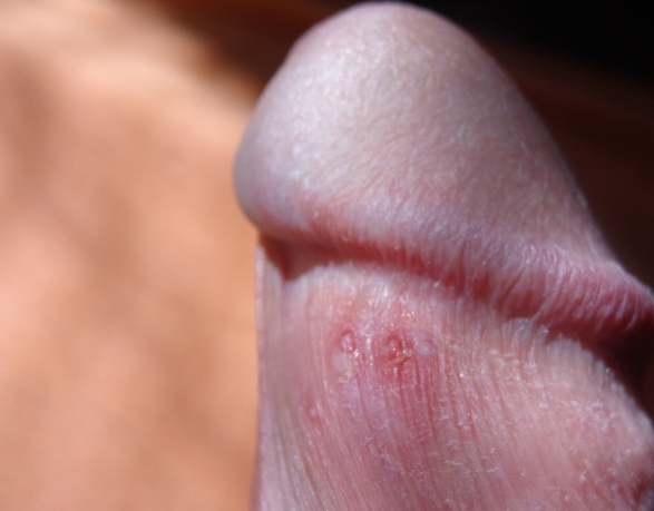 Bumps On Penis Foreskin