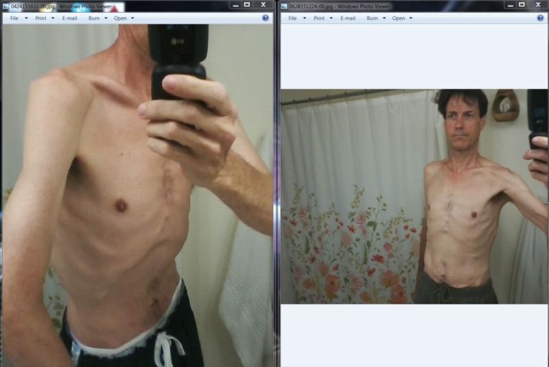 Cia weight loss image 10