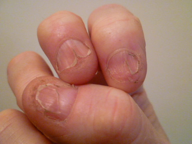 LP of the nails | Lichen Planus | Forums | Patient