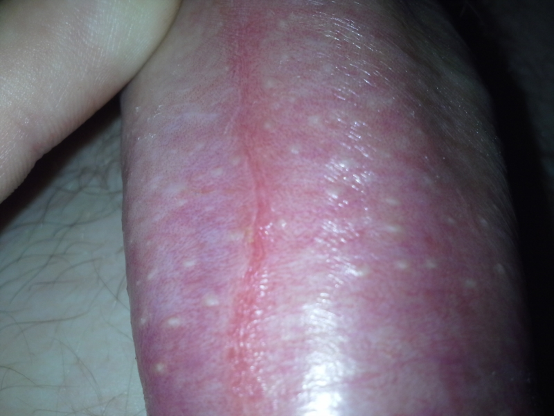 Spots on back of penis