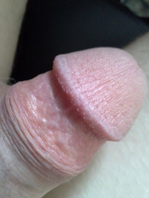 i have white dots on my penis