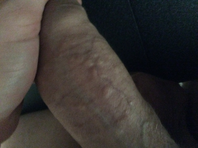 Red Bumps Shaft Of Penis