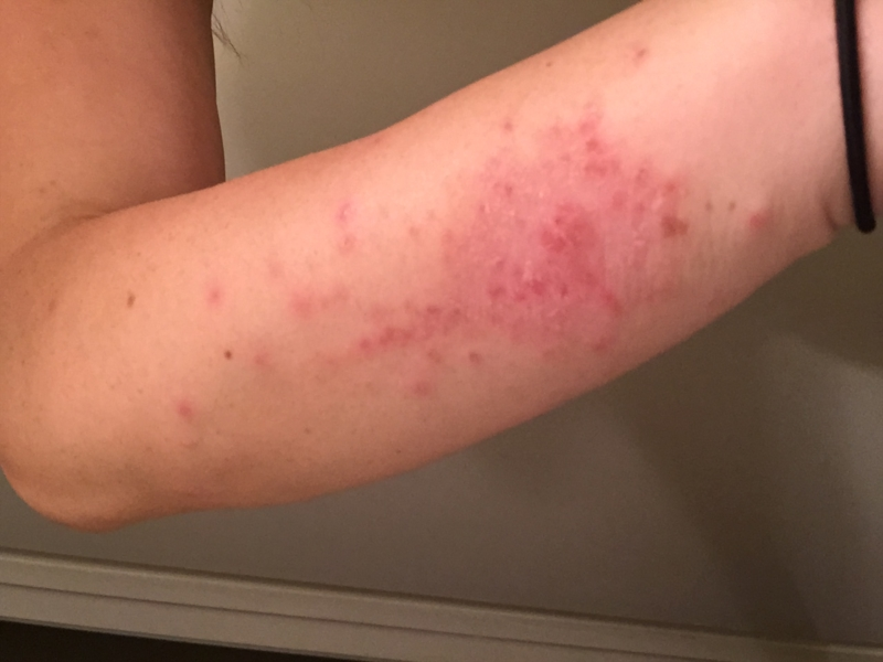 Skin Reaction To Valtrex Genital Herpes Simplex Forums Patient