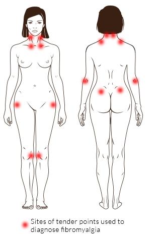 Pressure points in fibromyalgia | Fibromyalgia Syndrome