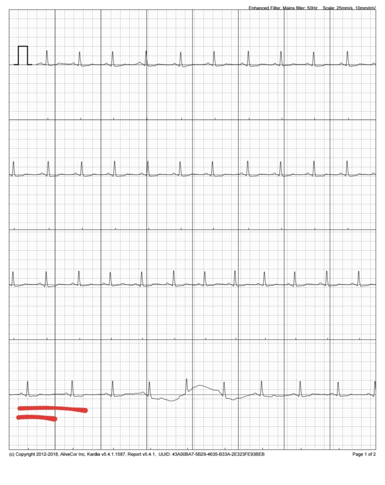 Fluttering in Chest with Sudden Slowing of Heartrate | Cardiac