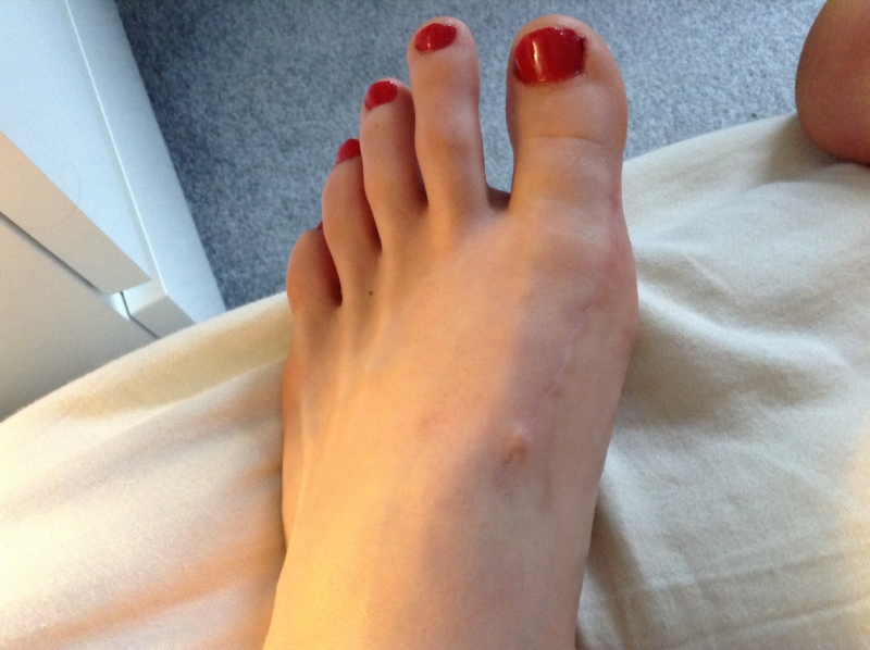 Bump at End of Incision? | Hallux Valgus (Bunions) | Forums
