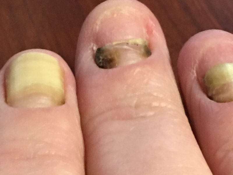 question about Yellow Nail Syndrome | Nail Disorders | Patient