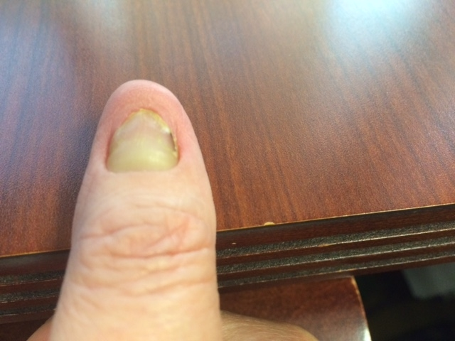 yellow nail syndrome (Page 2) | Nail Disorders | Patient
