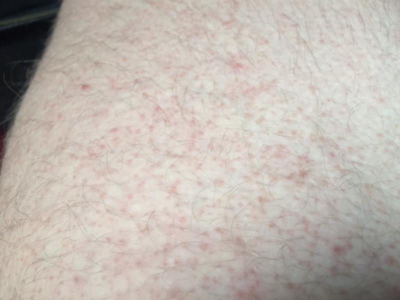 how to stop heat rash on hands