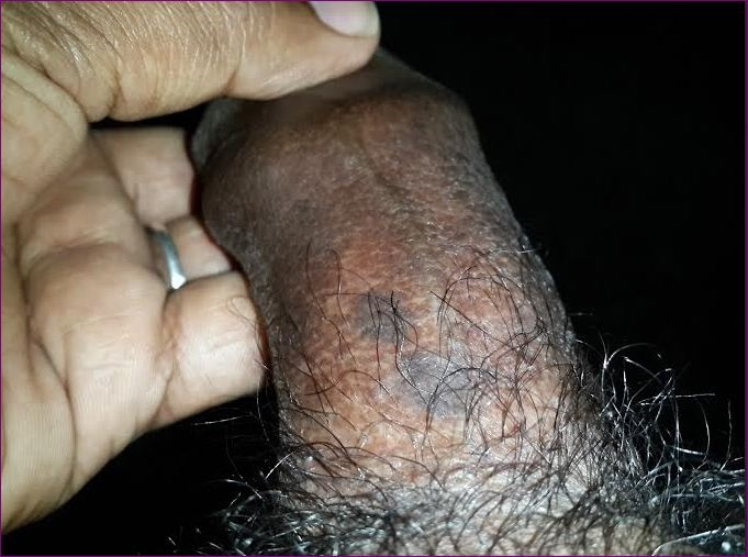 brown spots on penis