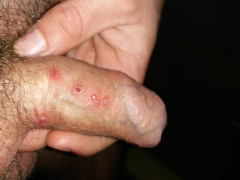 Is It Herpes Or Something Else