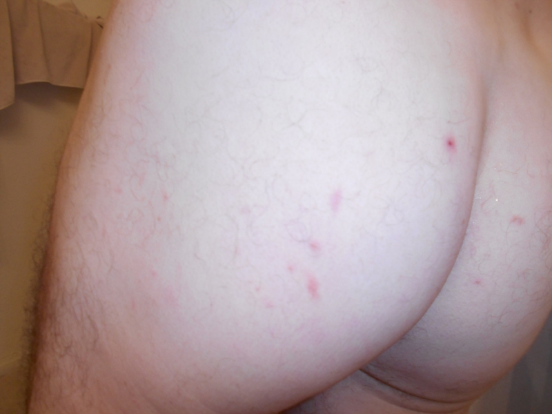 Spots on my bum crack itch