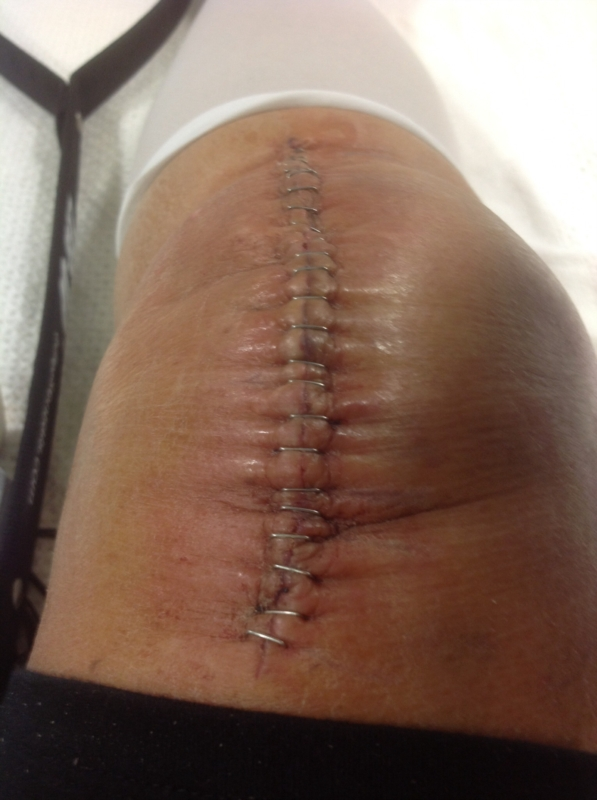 Doctor To Go Or Not To Go >> Undissolved stitches | Knee Problems | Bones, joints and muscles | Community | Patient