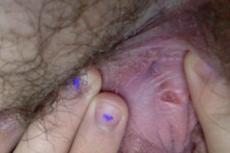 Vaginal Itching