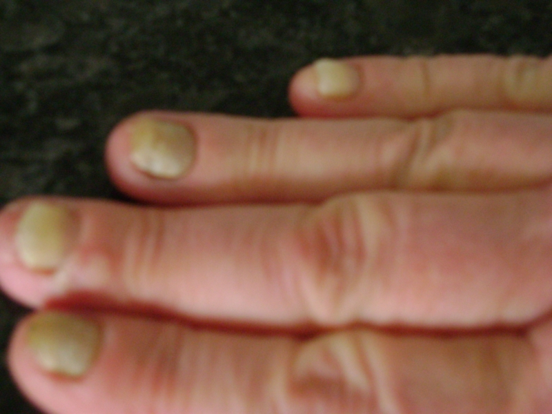yellow nail syndrome | Nail Disorders | Patient