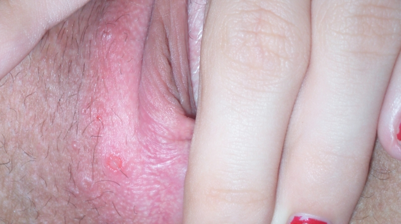 What causes a vaginal blister