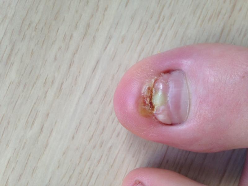 Help - toe nail pail, possibly frontal ingrown   Nail Disorders ...