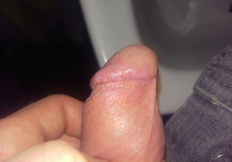 Foreskin issue marks, brown patches, bumps