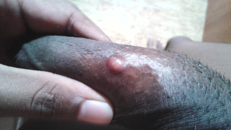 Brown Papules On The Penis
