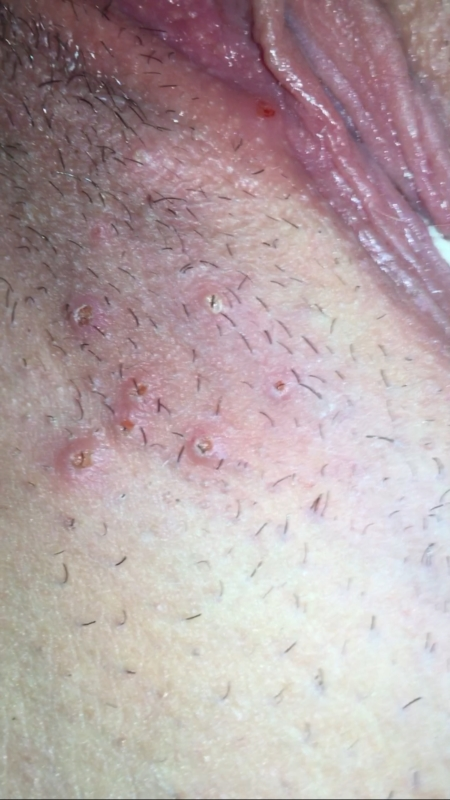 what does bump on pubic hair look like can somebody tell me if this could possibly be genital