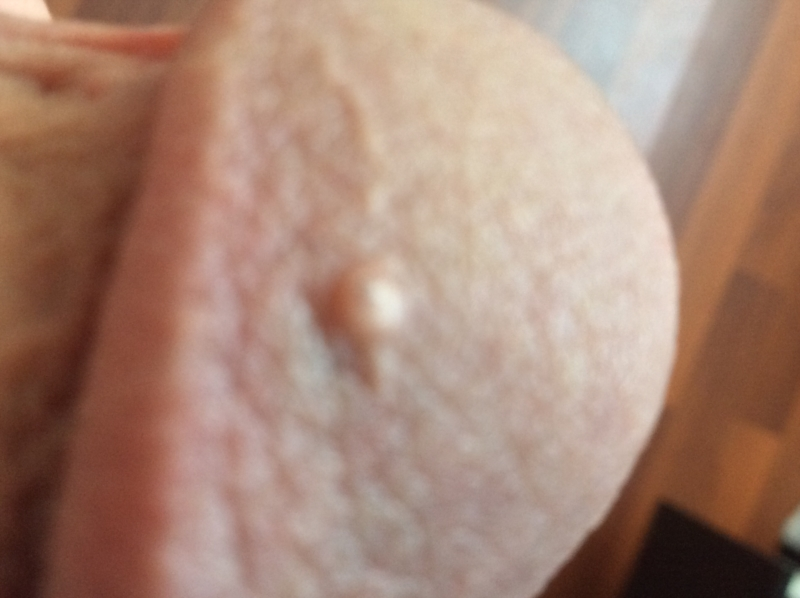 Small bumb on bottom of penis